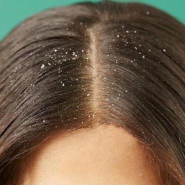 10 Ways to Naturally Get Rid of Hair Dandruff