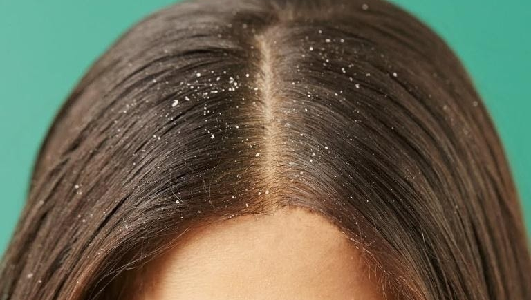 10 Ways to Naturally Get Rid of Hair Dandruff